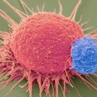 Cancro e cure alternative, perché è facile credere ai miracoli