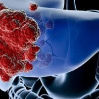 Tumore del fegato, l'Europa approva un nuovo farmaco