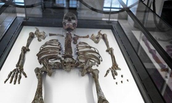 Alta, giovane e muscolosa, la donna di Ostuni si svela ai raggi X