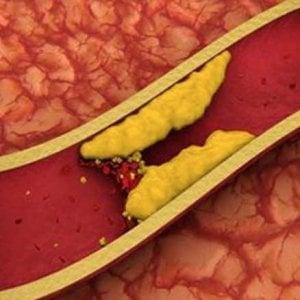 Le statine anti-colesterolo possibile scudo contro il tumore al seno