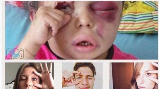 """""""Occhi aperti"""" sullo Yemen, il gesto di una bimba diventa il simbolo del conflitto"""