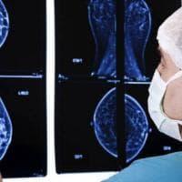 Cancro al seno: ancora troppe donne non aderiscono allo screening