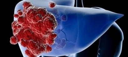 Tumore del colon: basta  una chemioterapia più corta