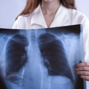 Tumori, crescono i casi tra le donne ma si vive più a lungo