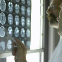 Big killer, ecco i cinque tumori più diffusi in Italia