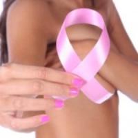 Tumore al seno, un farmaco biologico