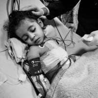 Fotoreportage su chi salva i bambini cardiopatici nel mondo