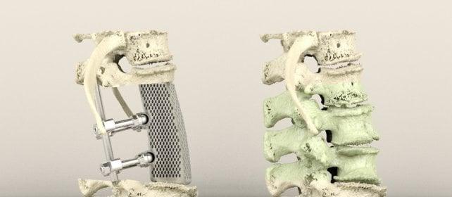 Tumori dell'osso, le protesi si stampano in 3D