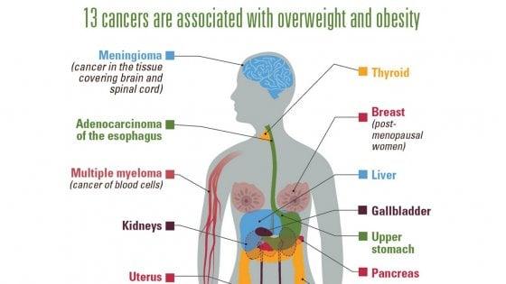 L'obesità aumenta il rischio di ammalarsi di 13 tipi di cancro