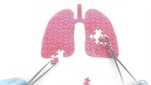 Tumore polmone, nivolumab e ipilimumab in combinazione raddoppiano tasso di risposta