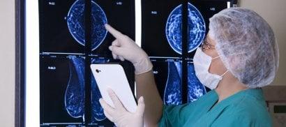 Il tumore non può attendere Troppi ritardi nella diagnosi