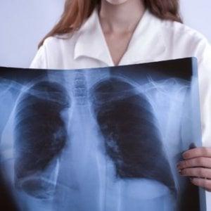 Tumore del polmone, a due pembrolizumab raddoppia sopravvivenza rispetto alla chemioterapia