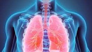 Polmone, pembrolizumab raddoppia sopravvivenza rispetto alla chemioterapia