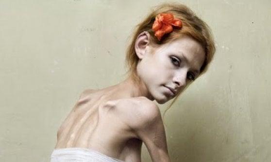 La bufala della modella anoressica sul poster per il referendum Veneto