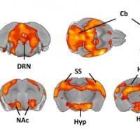Così il cervello si attiva con la serotonina: la scoperta a Pisa