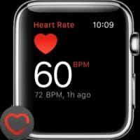 Apple Watch potrebbe rilevare l'ipertensione e le apnee notturne