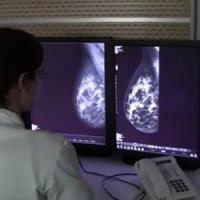 Tumore al seno e linfoma: le nuove terapie sottocutanee sono efficaci