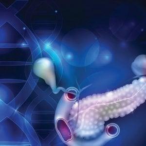 Tumore al pancreas, nasce la Federazione di associazioni dei pazienti