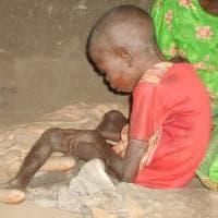 Africa: la sindrome del dondolamento, che nel silenzio porta alla morte