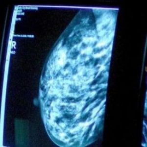 Tumori della mammella e ovaio, il 10% è dovuto a trasmissione ereditaria