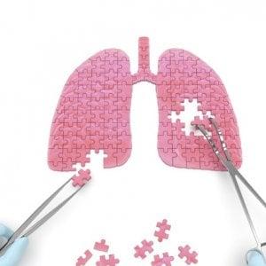 Tumore polmone, chirurgia e farmaci insieme per ridurre la mortalità