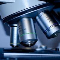 Tumore ovarico, uno studio rivela: Il rischio può essere trasmesso dal cromosoma X del...