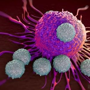 Tumori testa collo: sicuro il mix di immunoterapia e terapia standard