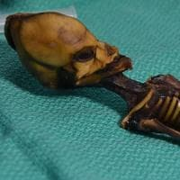 Svelato il mistero del piccolo scheletro di Atacama: non è alieno ma un feto umano