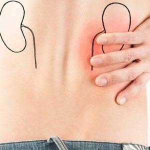 Tumore del rene: parere favorevole del Chmp per cabozantinib