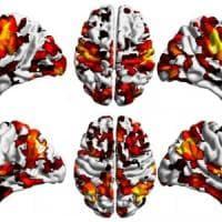 Cervello, trovata la 'culla' della schizofrenia
