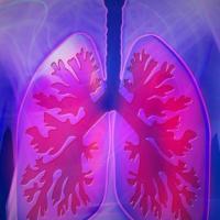 Polmone: la combinazione di due immunoterapie rallenta la progressione del tumore