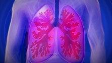Tumore del polmone, la cura personalizzata comincia dalla diagnosi    VIDEO