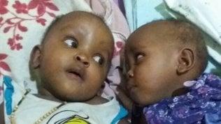 Francine e Adrienne, le gemelline siamesi operate in Italia tornano in Burundi Foto