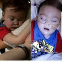 Staccata il respiratore del piccolo Alfie: ma il bimbo è ancora vivo