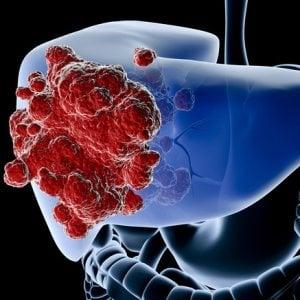 Tumore del fegato, sorafenib e regorafenib in sequenza migliorano la sopravvivenza