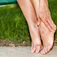 Dieci consigli per combattere le gambe gonfie