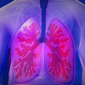 Tumore del polmone, l'immunoterapia ha un'arma in più
