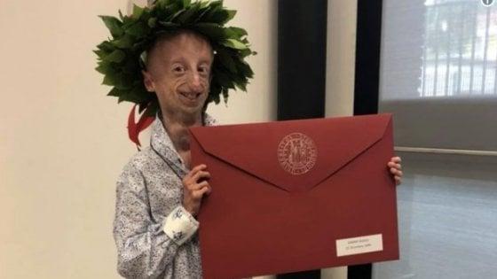 Sammy Basso si laurea in Scienze con 110 e lode: un'altra vittoria per il ragazzo affetto da progeria