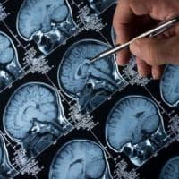 Alzheimer, speranze dai primi test su un farmaco