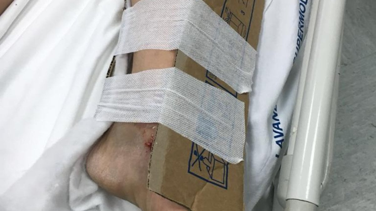 reggio calabria, manca il gesso in ospedale: fratture medicate col cartone - la repubblica
