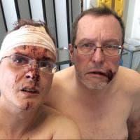 Belgio, aggressione omofoba: fumettista italiano e marito picchiati