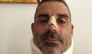 """Chievo, Sorrentino dimesso dall'ospedale: """"Sono stato di parola, ho fermato CR7 con ogni mezzo"""""""