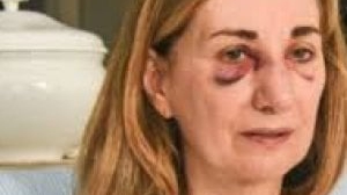 La prof di anatomiacomplete italian movie f70