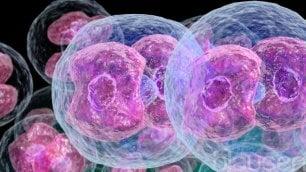 Arriva primo immunoterapico per il linfoma di Hodgkin