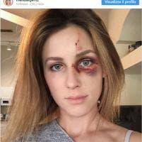 """Campione di motocross picchia la fidanzata perché """"troppo scollata"""". Lei lo denuncia su Instagram"""