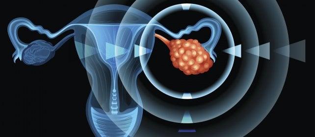 Tumore all'ovaio, nuove conferme sull'aspirina per ridurre il rischio