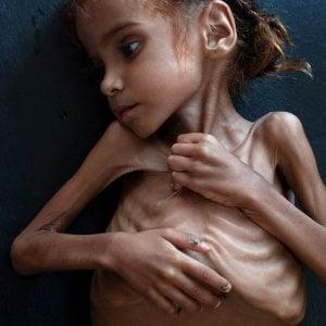 Yemen: è morta Amal, la bambina simbolo della guerra dimenticata