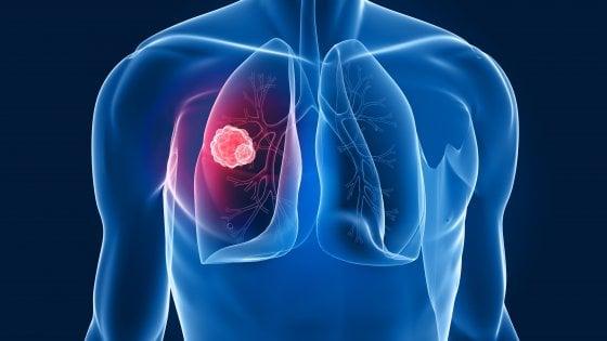 Tumore del polmone, in Europa l'accesso a test diagnostici  e terapie innovative non è uguale per tutti