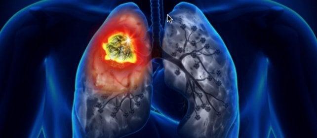 Tumore del polmone, l'accesso a diagnosi  e terapie innovative non è uguale per tutti