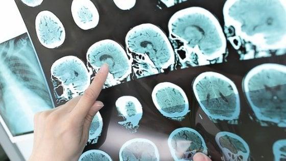Alzheimer, la diagnosi arriva dall'intelligenza artificiale